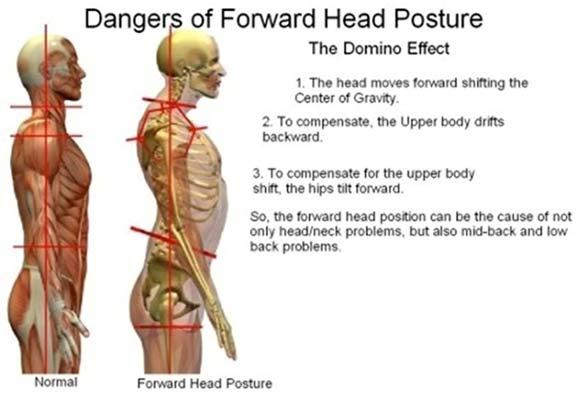 Chiropractic Richmond VA Forward Head Posture Dangers